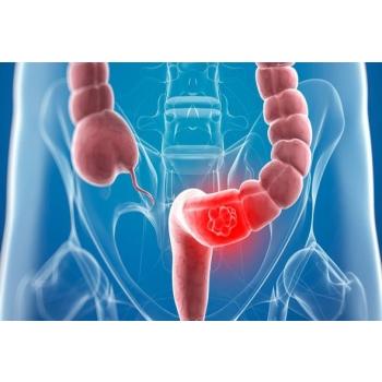 bowel fob.jpg