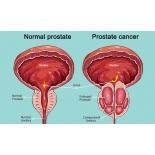 PSA (prostataspetsiifiline antigeen) eesnäärme kodune kiirtest