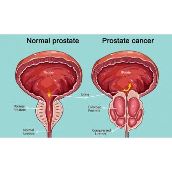 prostate-cancer.jpg